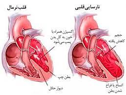 پاورپوینت نارسایی قلبی